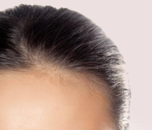 Haare ohne Schuppen