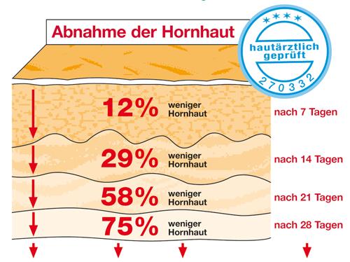 Abnahme der Hornhaut um 75%